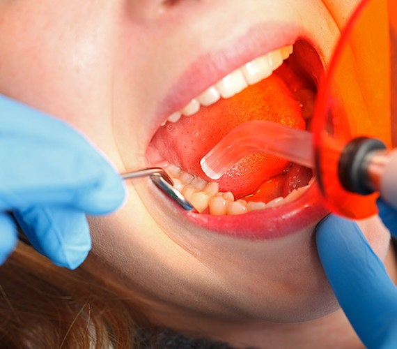 Patient receiving cosmetic dental bonding treatment