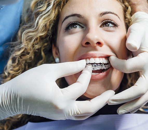 Dentist putting in clear aligners for patient